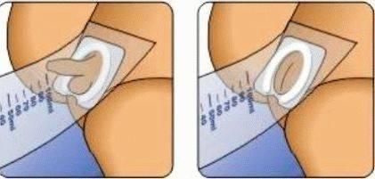 Как правильно собирать мочу у грудничка девочки и мальчика, 1-2 года, на общий анализ
