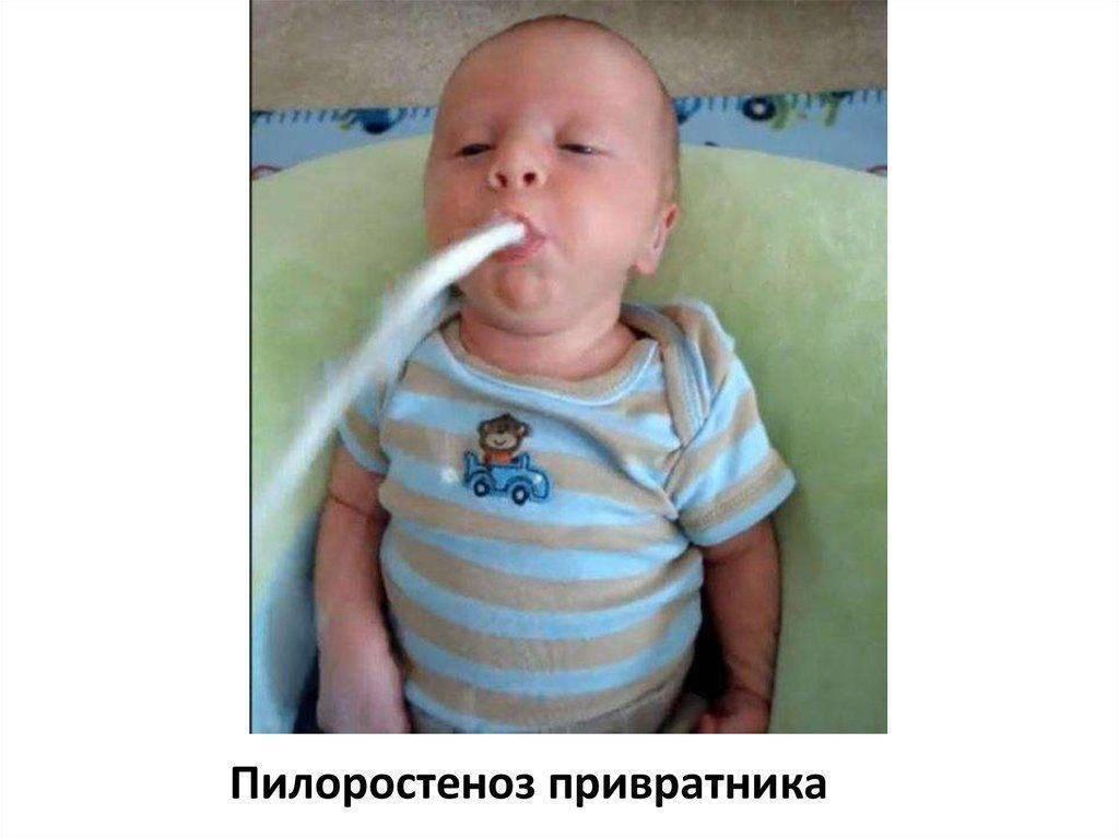 Почему ребенок срыгивает и стоит ли по этому поводу хвататься за голову