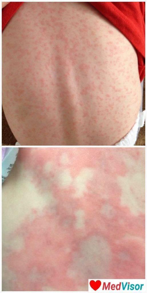 Симптомы аллергии на антибиотики у детей