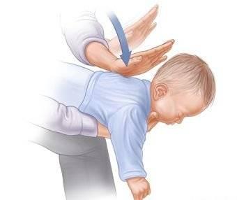 Неотложная помощь ребенку, который поперхнулся или подавился