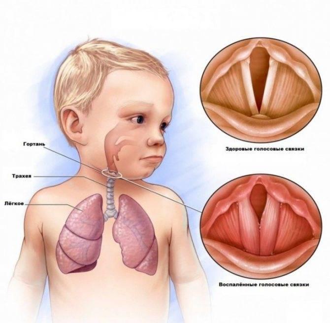Трахеит у детей: симптомы, лечение и профилактика