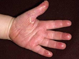 Причины сухости и шелушения кожи у грудного ребенка - лечение мазями, кремами и народными средствами
