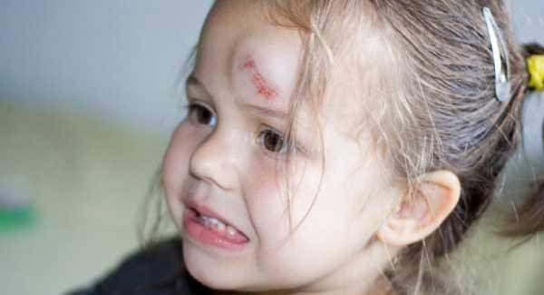 Упал с кровати и ударился головой. - запись пользователя printemps (printemps) в дневнике - babyblog.ru