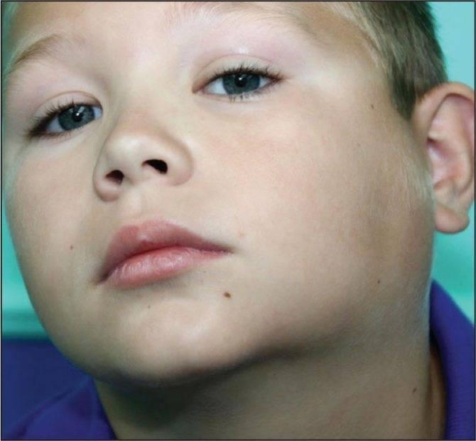 Лимфадениты у детей. причины, симптомы, диагностика, лечение
