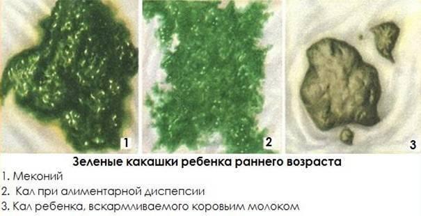 Зеленый стул у ребенка: 11 причин ужасной зелени в памперсах