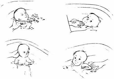 Симптом грефе (заходящего солнца) у новорожденных и грудничков: причины, симптомы и лечение