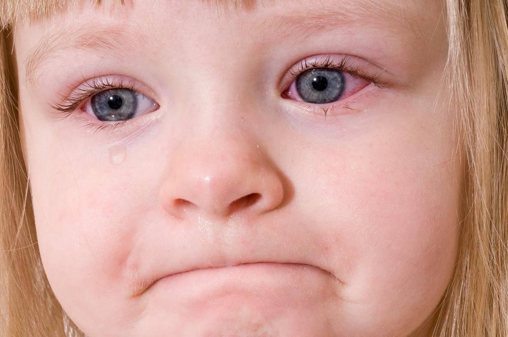 Отек глаз у ребенка причины