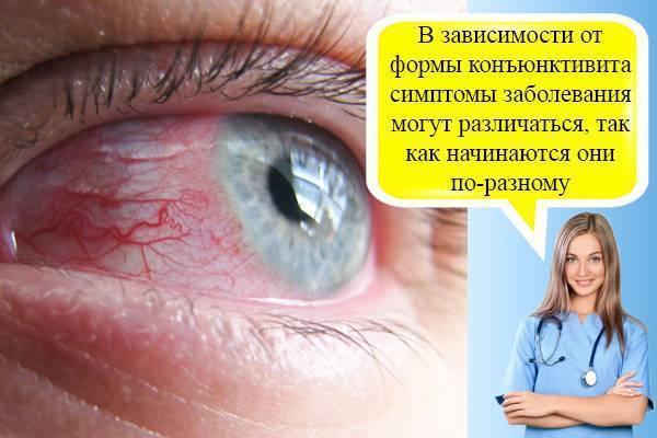 Разный размер глаз у малыша - запись пользователя lenchik (elena-antonova) в сообществе здоровье новорожденных в категории болезни глаз - babyblog.ru
