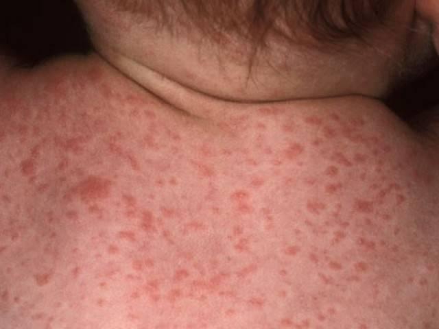 Сыпь на животе у взрослого, фото с пояснениями. с зудом и без, в виде красных точек, что это
