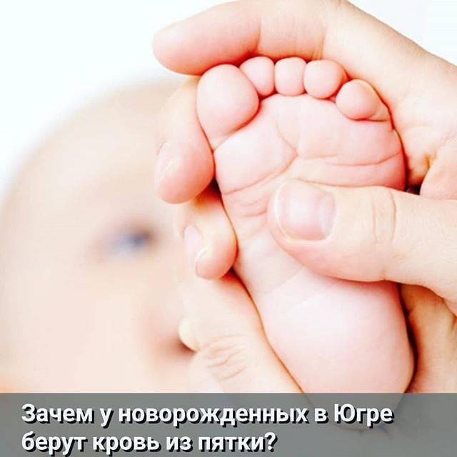 Неонатальный скрининг   | материнство - беременность, роды, питание, воспитание