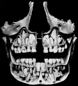 Коренные (постоянные) зубы у детей: сроки и порядок прорезывания, схема