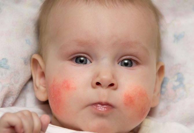 Аллергия у младенцев при грудном вскармливании