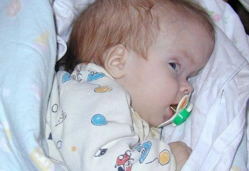 Неровный череп - запись пользователя катюня (_icelady_) в сообществе здоровье новорожденных - babyblog.ru