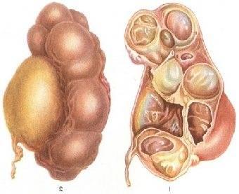 Гидронефроз у новорожденного мальчика
