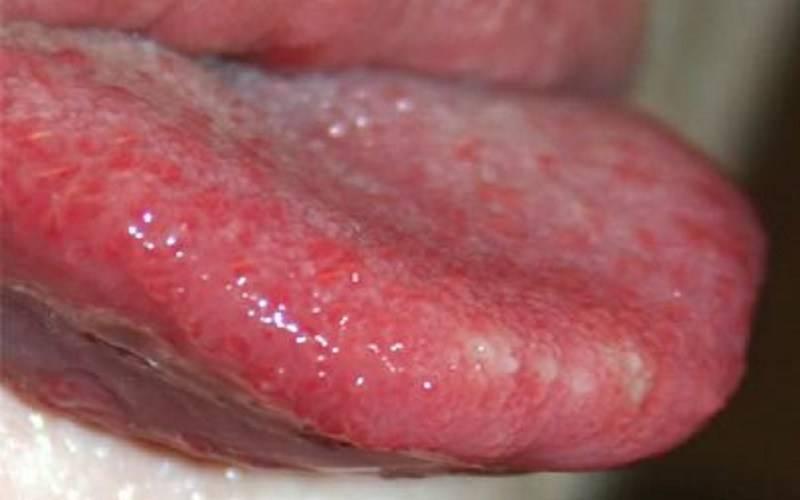 Болезни, вызывающие появление красных точек на небе у ребенка