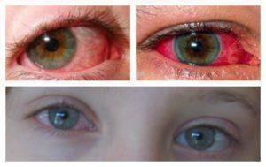 Почему красные глаза у новорожденного ребенка — что делать