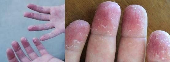 Шелушится кожа на ладонях и пальцах рук - фото и причины