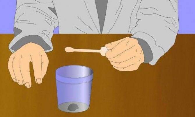 Расшифровка копрограммы у детей до года. советы и правила взятия анализов кала у грудничков