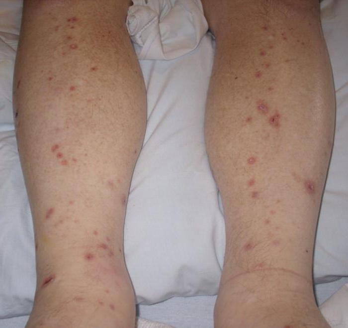Высыпания на теле у ребенка и зуд: что делать, если кожа с сыпью чешется на спине, шее и стопах