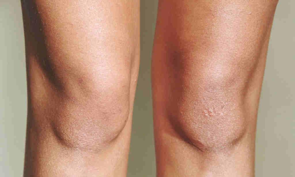 Почему облазит кожа на пальцах рук и ног у ребенка — возможные причины и лечение