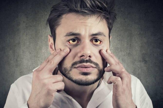 Желтые белки глаз у новорожденного: возможные причины, описание с фото, возможные проблемы и рекомендации педиатров
