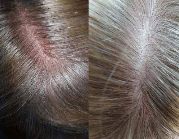 Почему шелушится кожа у ребёнка: причины, диагностика, лечение