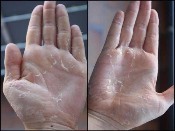 Если у ребенка облезает кожа на пальцах...