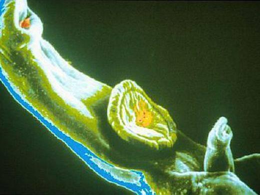 Как выглядят глисты в кале у взрослого человека или ребенка?