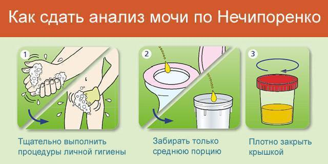 Как ребенку собрать мочу по нечипоренко!?????? - запись пользователя олька (olivia13) в дневнике - babyblog.ru