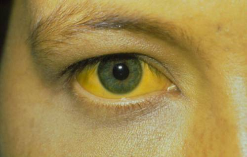 Желтоватые склеры глаз!!!! 3 недели!