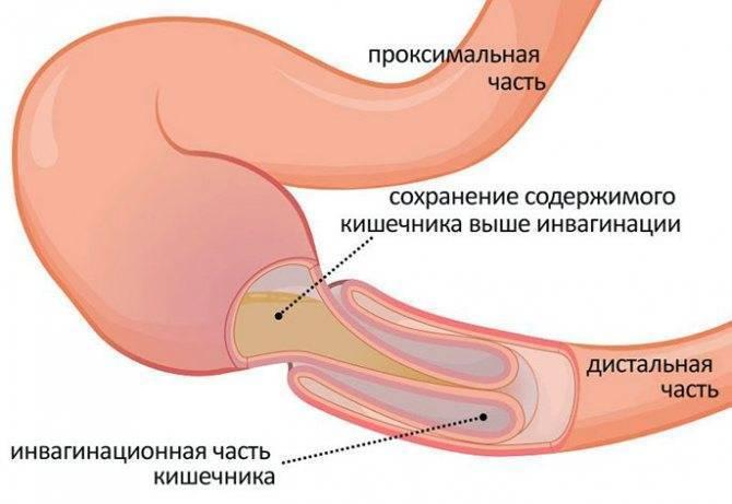 Воспаление слизистой кишечника у грудничка