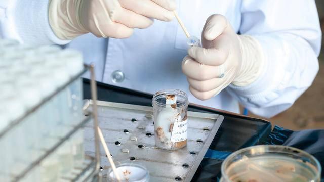 Анализ кала на яйца глист (гельминтов). соскоб на энтеробиоз у детей и взрослых. как правильно подготовиться и как сдать анализ.  :: polismed.com