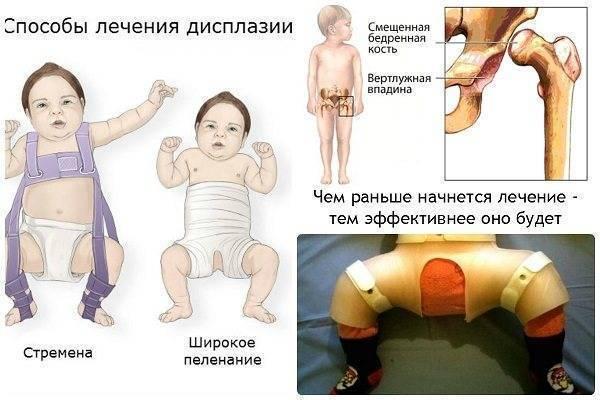 Дисплазия тазобедренного сустава у грудничка (новорожденного)