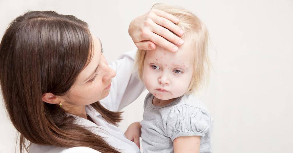 Причины появления родимых пятен у детей и необходимость удаления