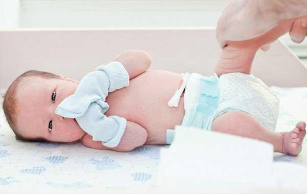 Обработка пуповины новорожденного: как обработать пупок при наличии прищепки, обработка после того, как отпала, первичная обработка пуповины