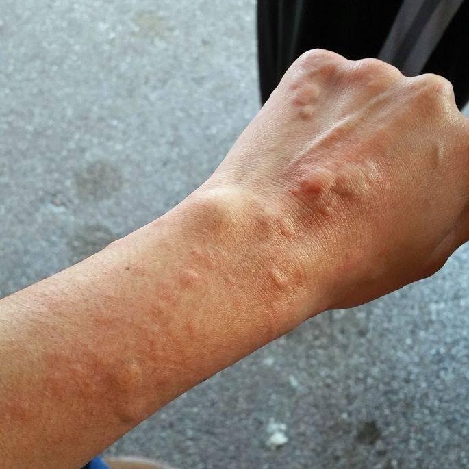 Аллергия на лице у грудничка: как выглядит, чем мазать, сколько проходит