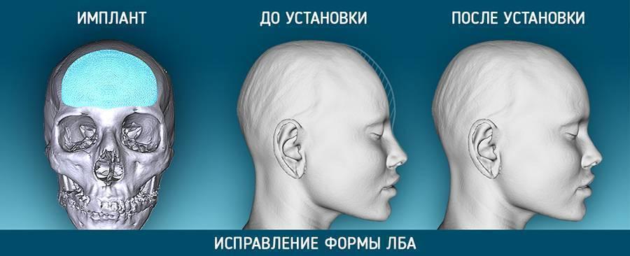 Неровный череп