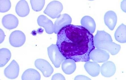 Моноциты в крови у детей и их норма