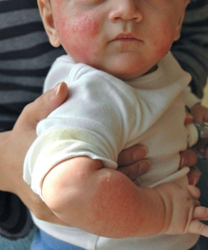 Бывает ли аллергия на грудное молоко у ребенка при грудном вскармливании