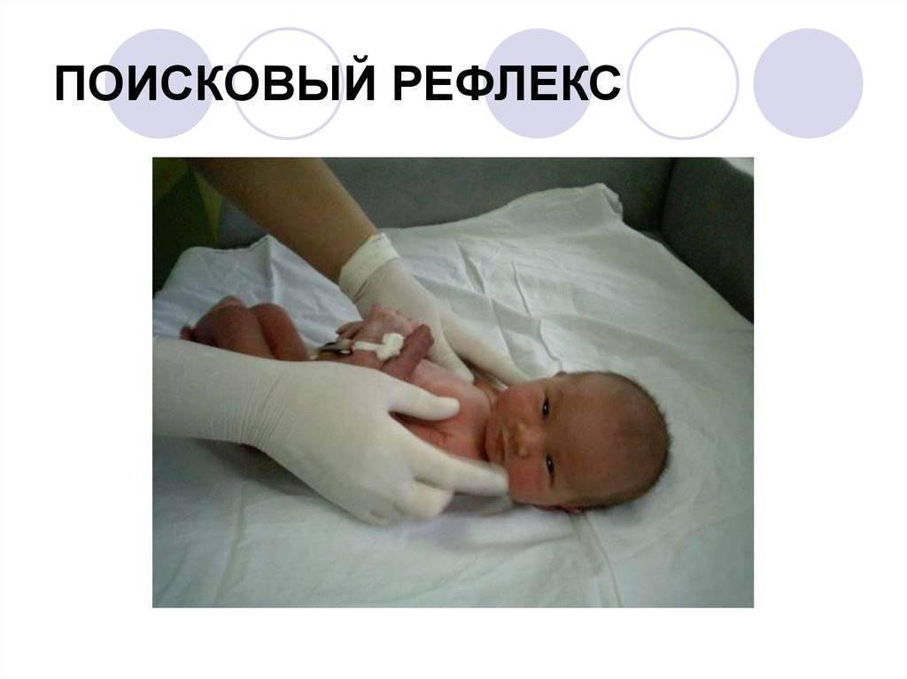 Безусловные рефлексы новорожденного: читать до/после общения с неврологом.  рефлексы новорожденных | метки: сосательный, врожденный, шаговый, проходить, малыш