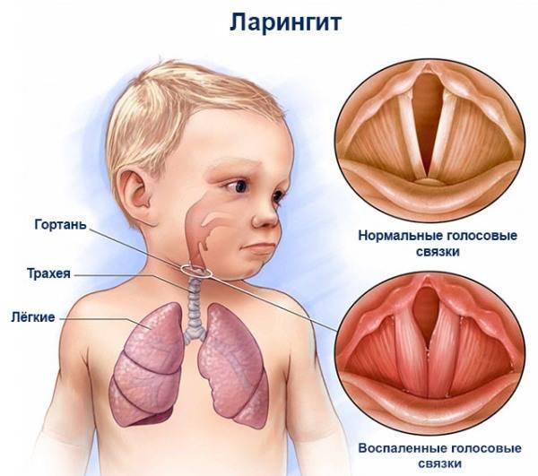 Почему ребенок задыхается и как ему помочь