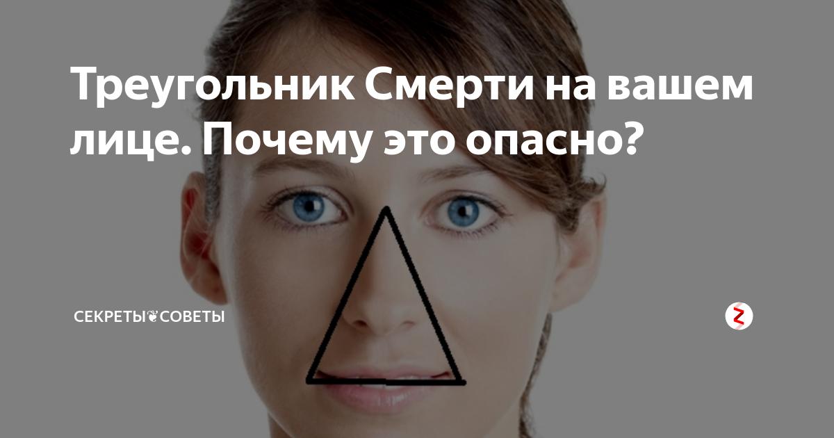 Синюшность носогубного треугольника