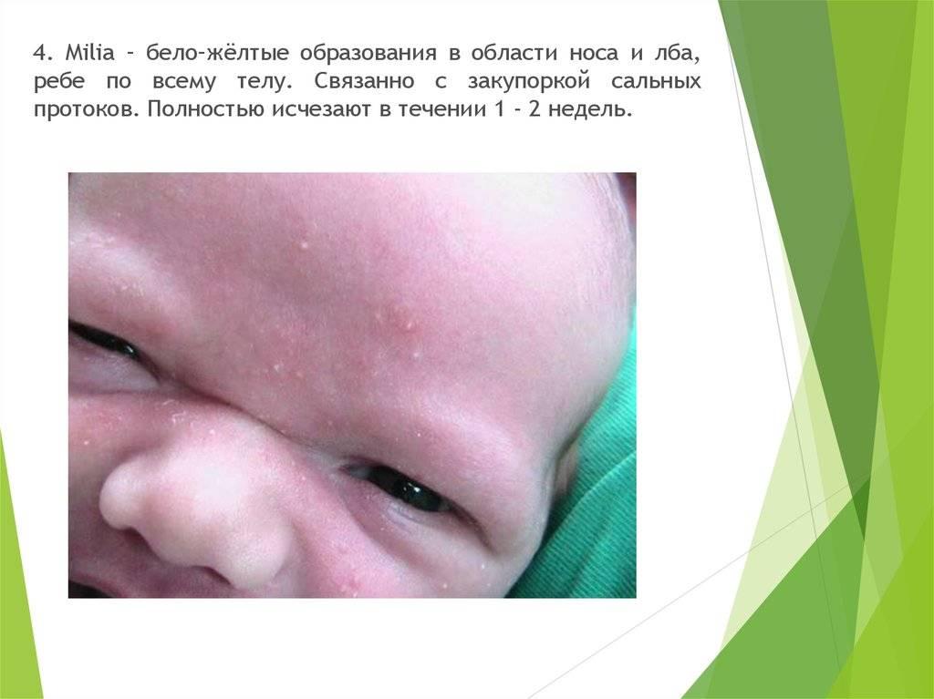 Физиологические состояния новорожденных