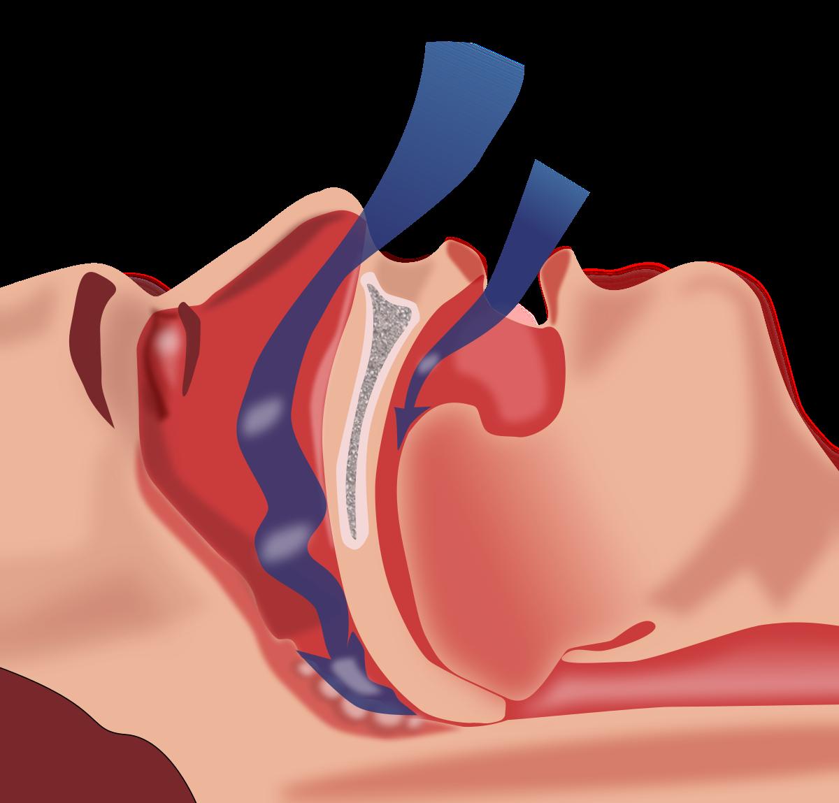 Методы лечения и профилактики апноэ сна у новорожденных