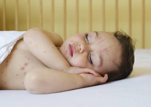 Сыпь на спине у ребенка