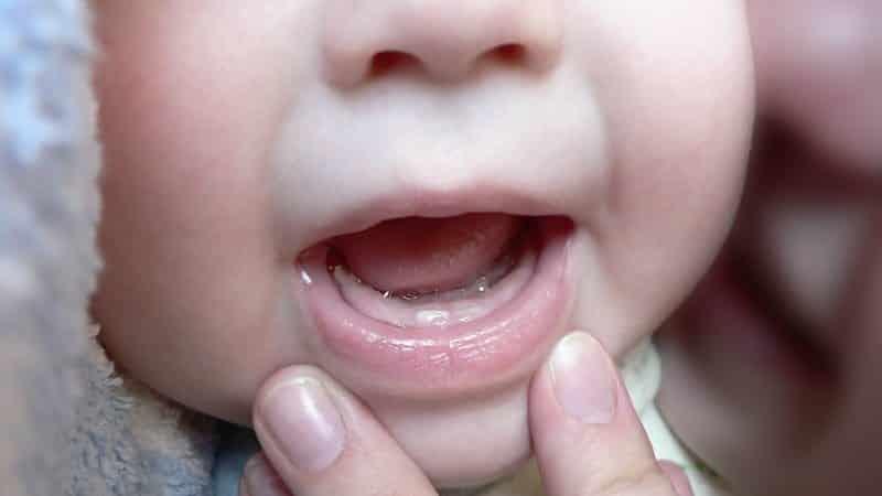 Прыщики на лице и теле у новорожденных и грудничков