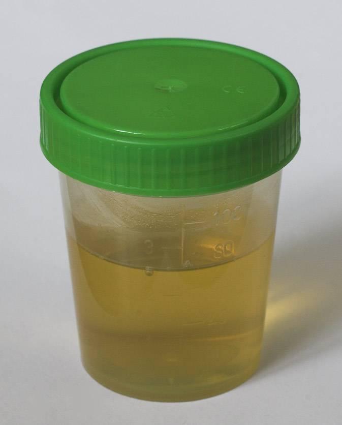 Лабораторные анализы – как собрать у грудничка мочу по сулковичу