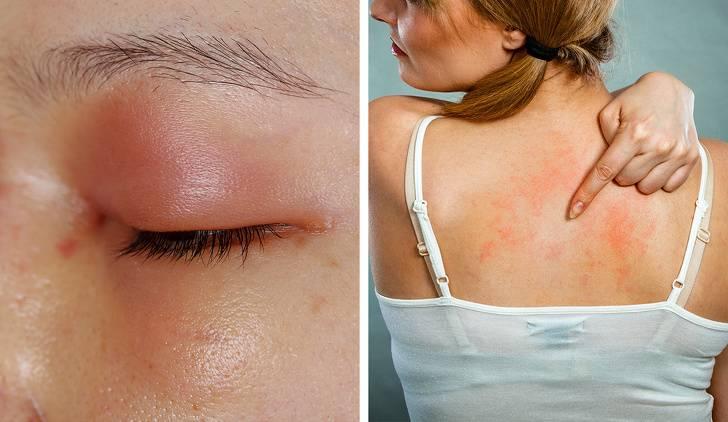 Антибиотики от аллергии на коже