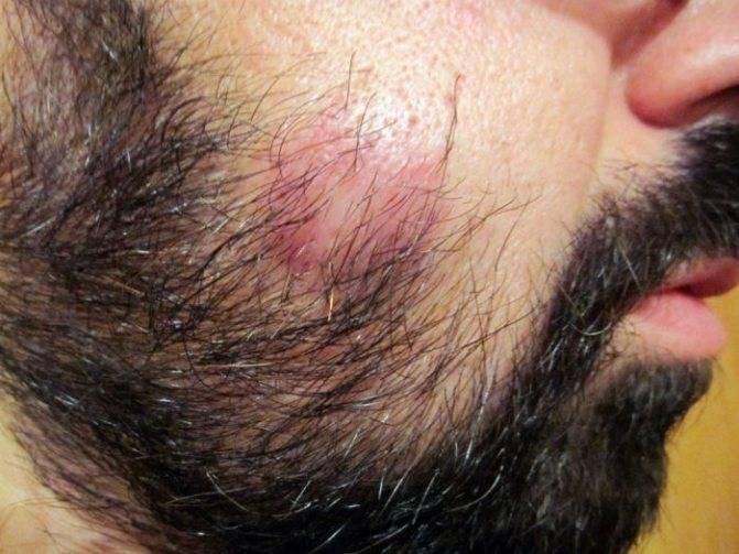 Гематома(шишка) на голове у ребенка. послеродовая травма.кто сталкивался?