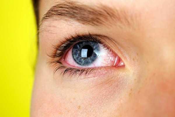Как закапать капли в глаза ребенку правильно